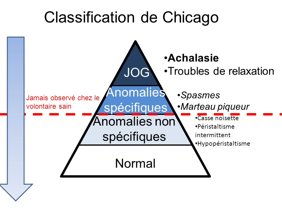 https://slideplayer.fr/slide/10354073/33/images/5/Classification+de+Chicago.jpg