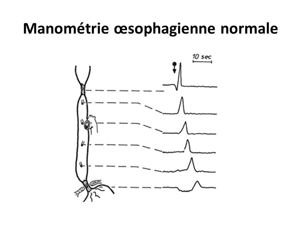 """Résultat de recherche d'images pour """"manomètrie oesophagienne normale"""""""